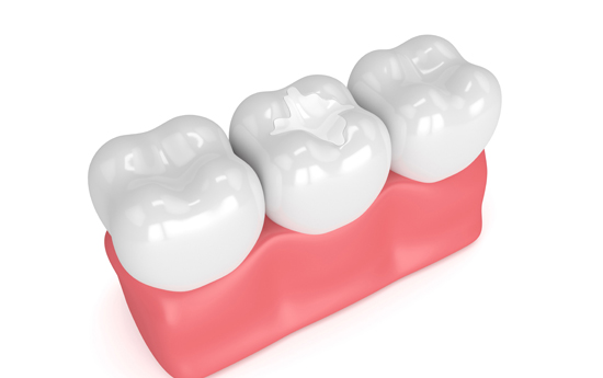 Who Is A Candidate For Sealants