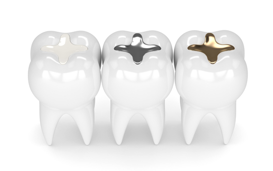 Who Is A Candidate For A Dental Filling