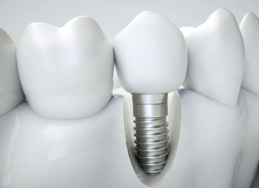 Dental Implants With Guided Surgery