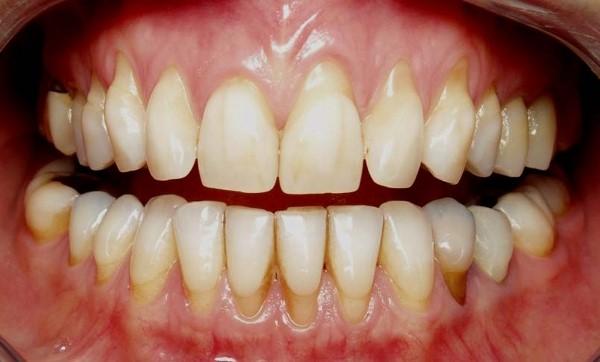 Dental Loosening