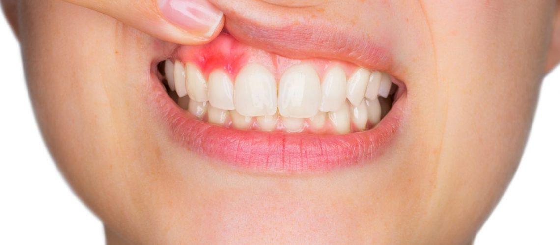 Gum Disease Causes And Symptoms